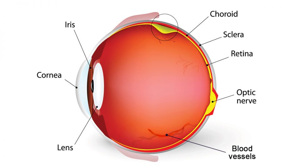 What is Diabetic Retinopathy and the importance to prevent it?