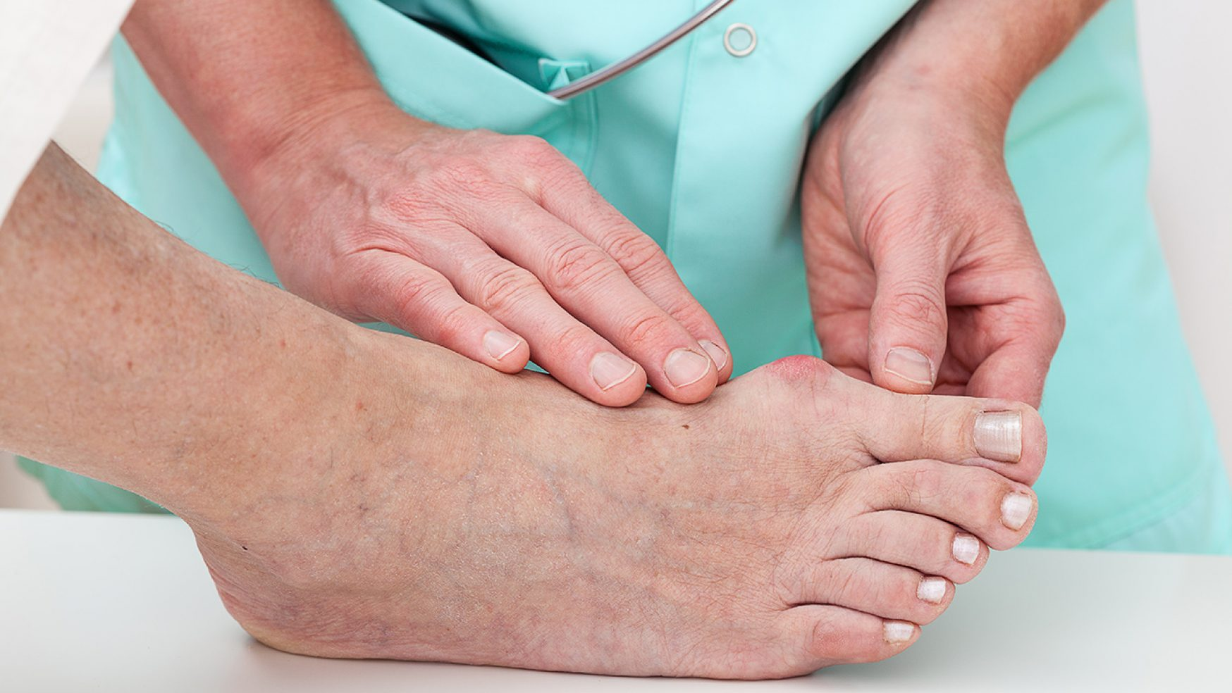 Study shows successful treatment for diabetic foot ulcers