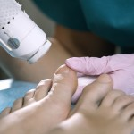 The importance of visiting a Podiatrist to maintain good Foot Care