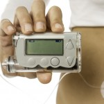 What are Insulin Pumps?