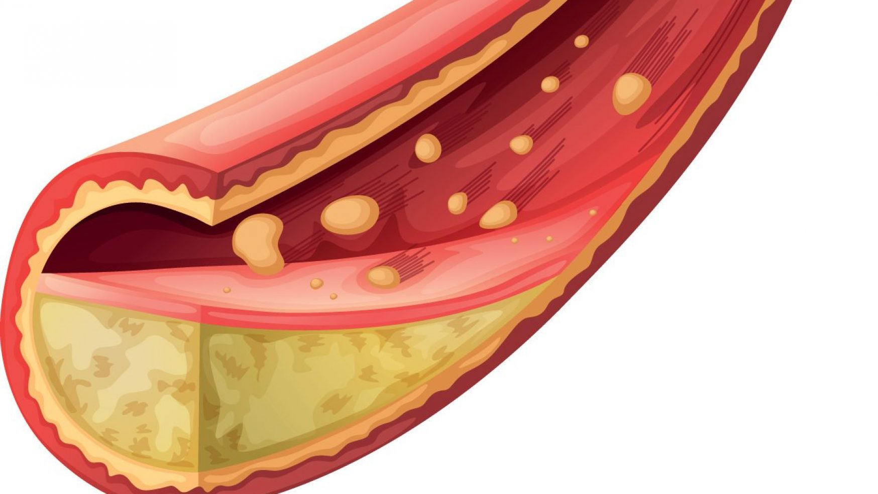 How do atherosclerotic plaques form and what happen if they progress?