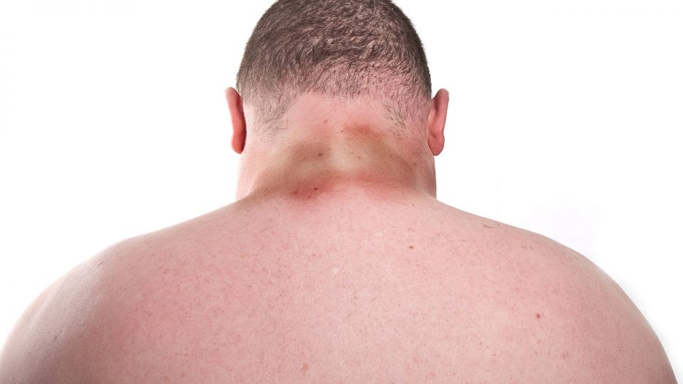 What is Acanthosis Nigricans or Pigmentosa?